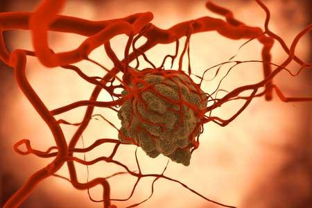 Is kanker te voorkomen?
