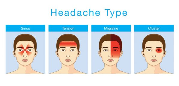 49995306 - illustration about headaches 4 type on different area of patient head.